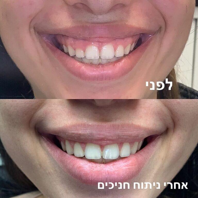 שיניים לפני אחרי
