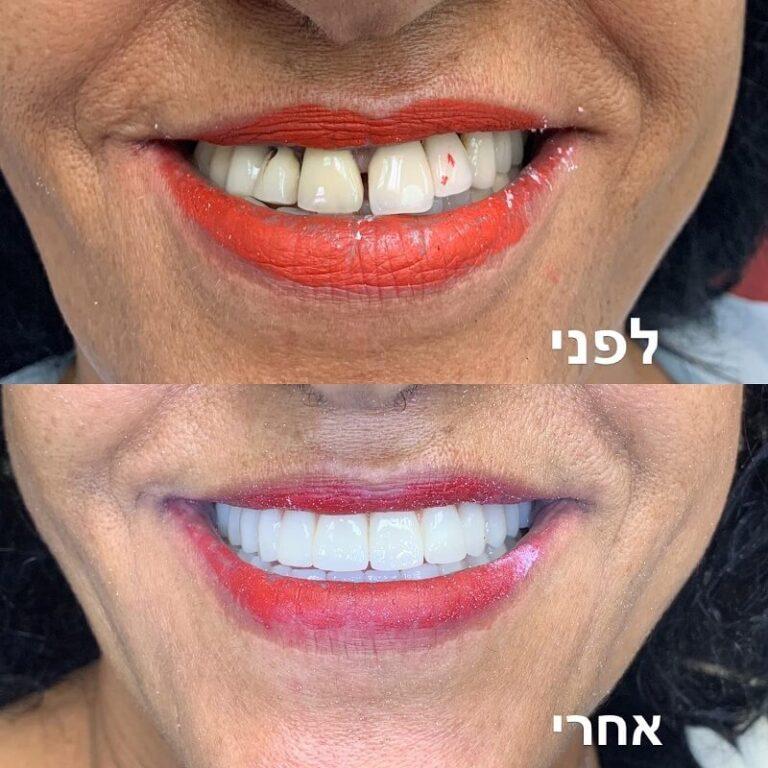 השתלת שיניים לפני אחרי