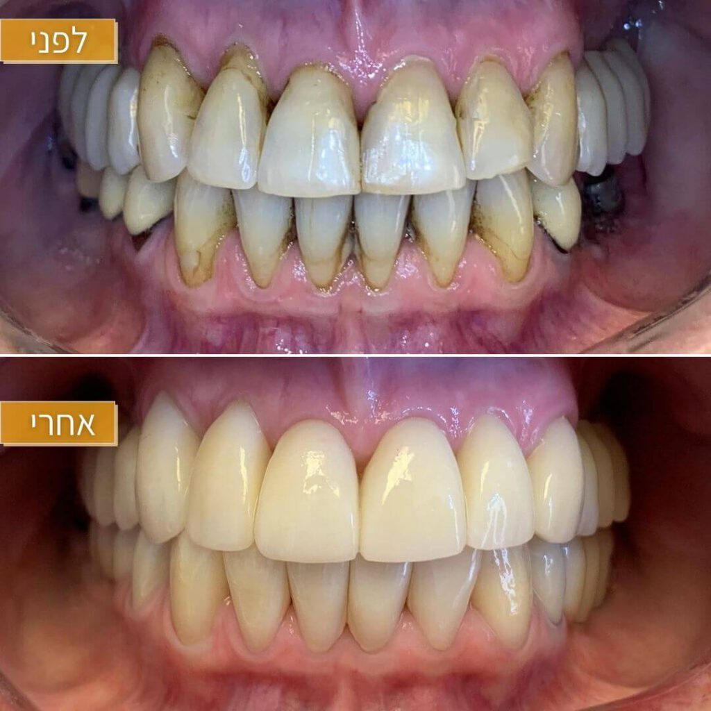 ציפוי למינייט חרסינה לשיניים
