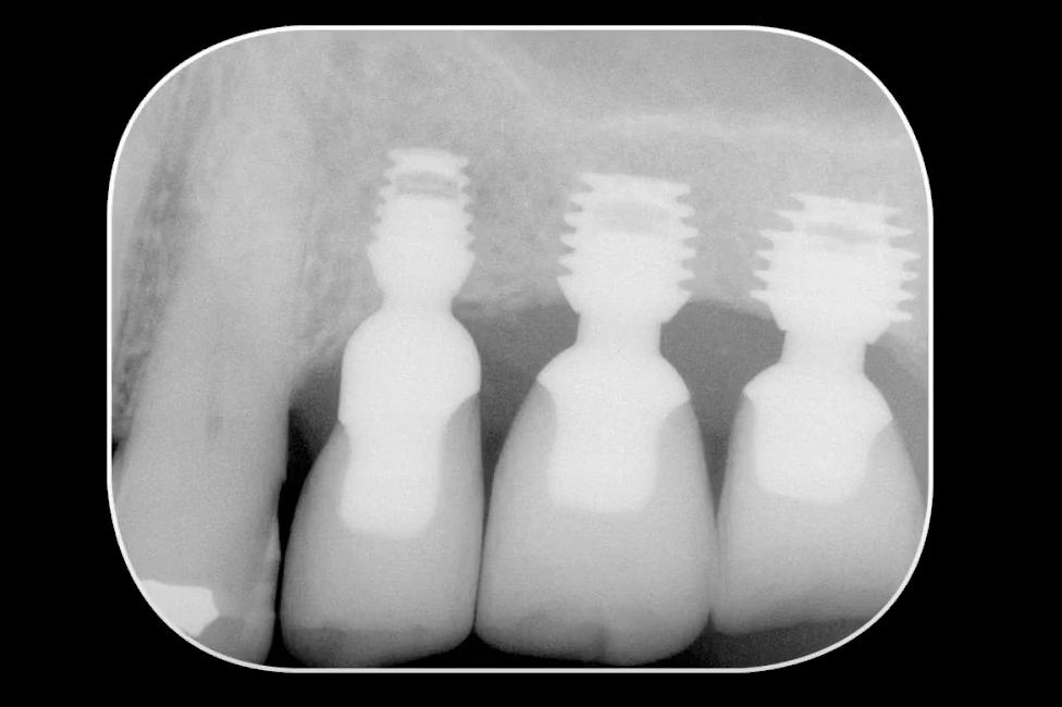 צילום רנטגן שתלים קצרים
