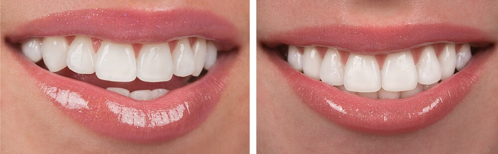 ציפויי חרסינה למינייט לשיניים