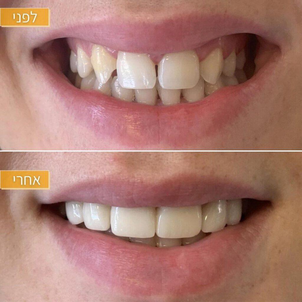 ציפוי למינייט לשיניים