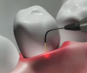 השתלת שיניים בלייזר