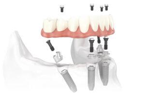 השתלות שיניים אול און 4