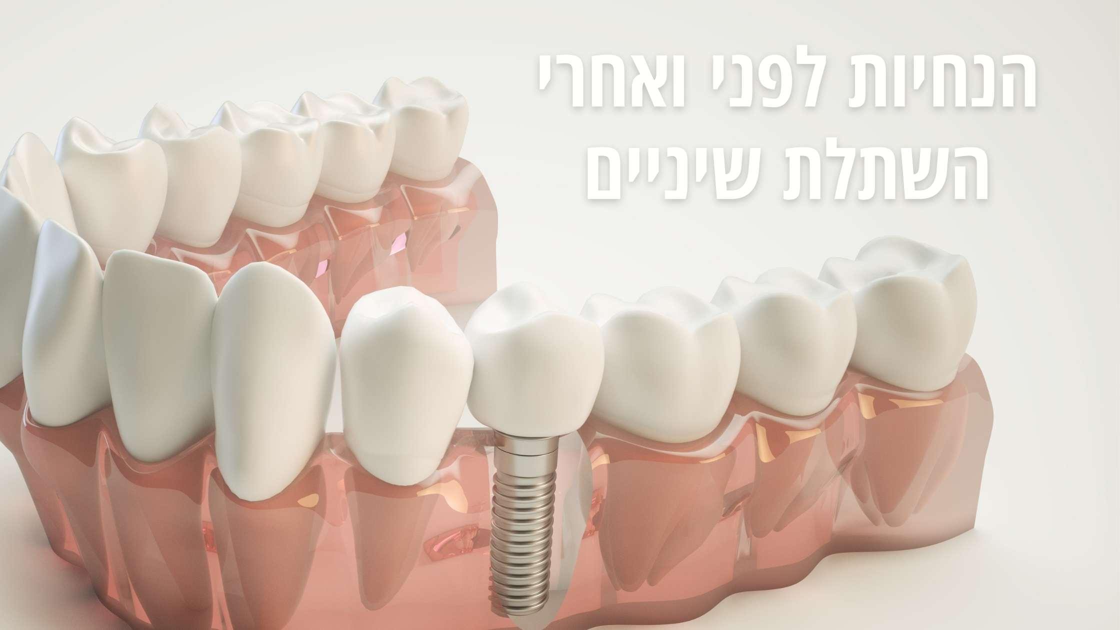הנחיות לפני ואחרי השתלת שיניים