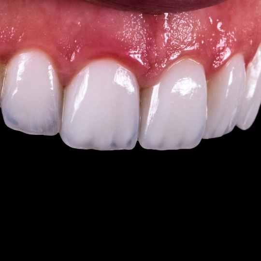 כתר חרסינה מלאה לשיניים