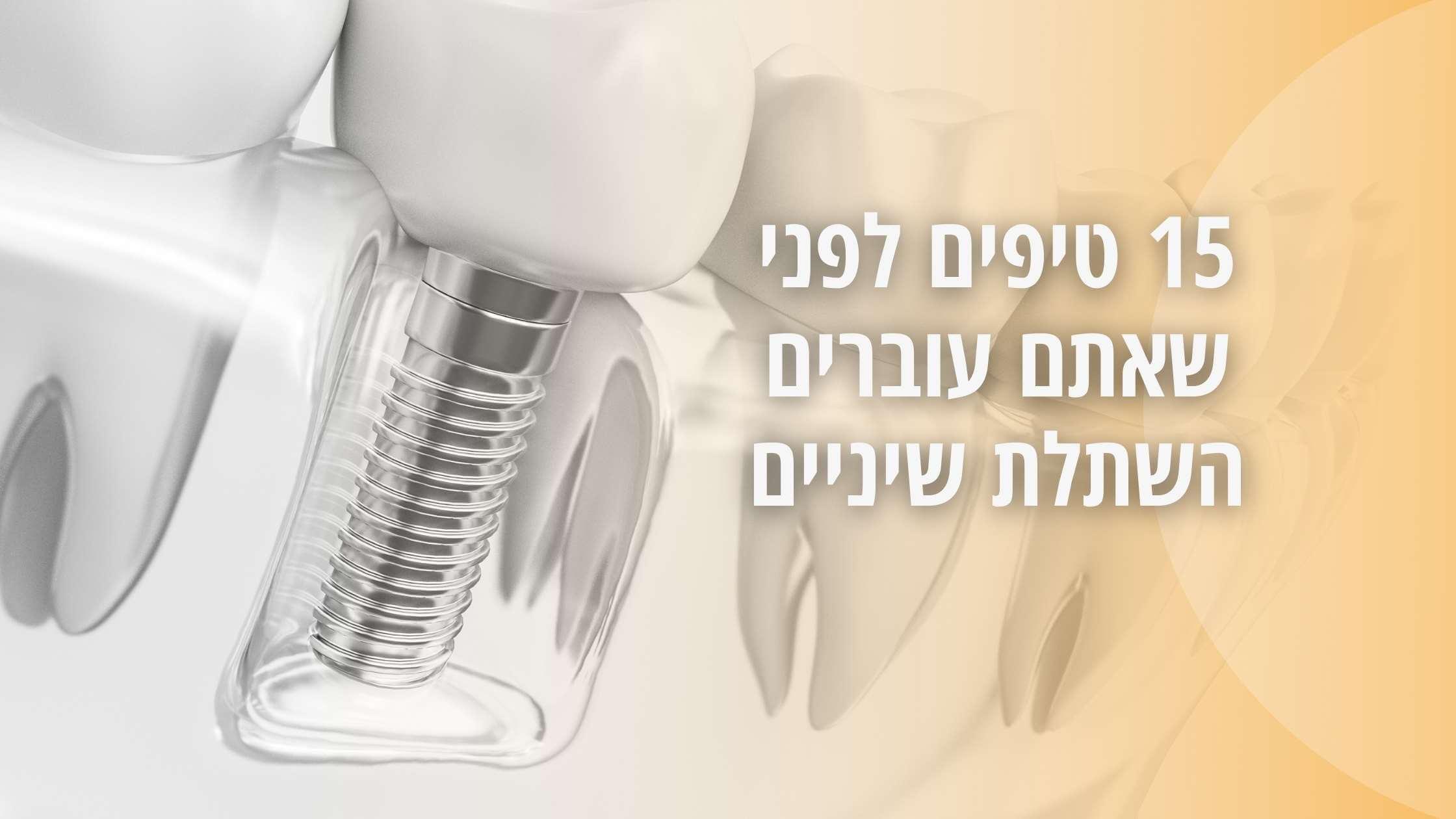 15 טיפים לפני שעוברים השתלת שיניים