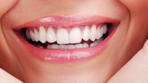 ציפוי לשיניים קדמיות