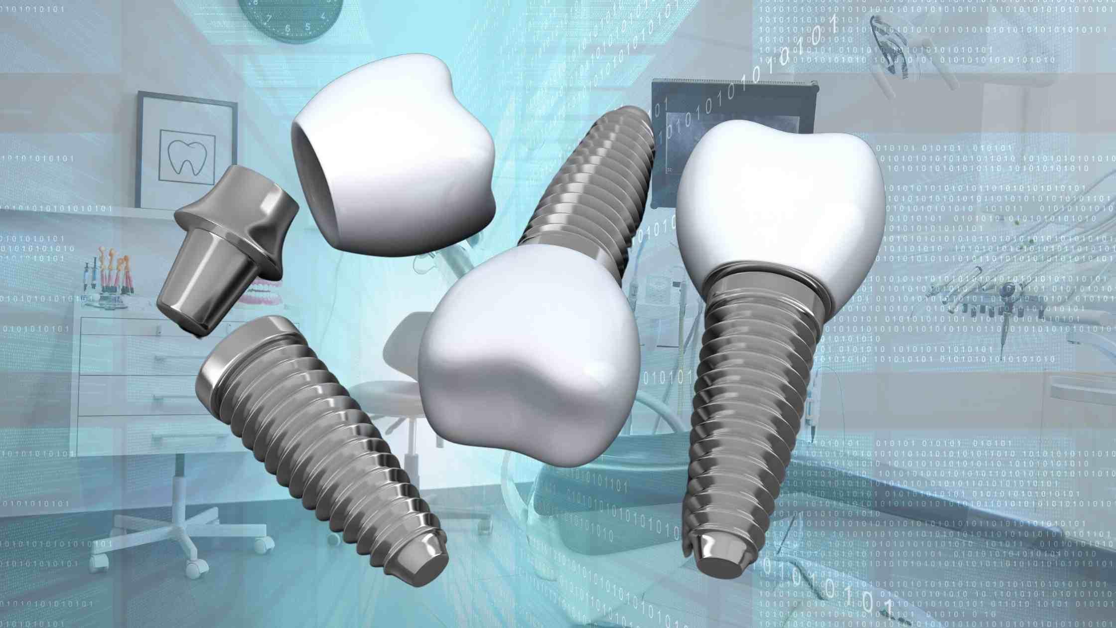כמה עולה השתלת שיניים ממוחשבת