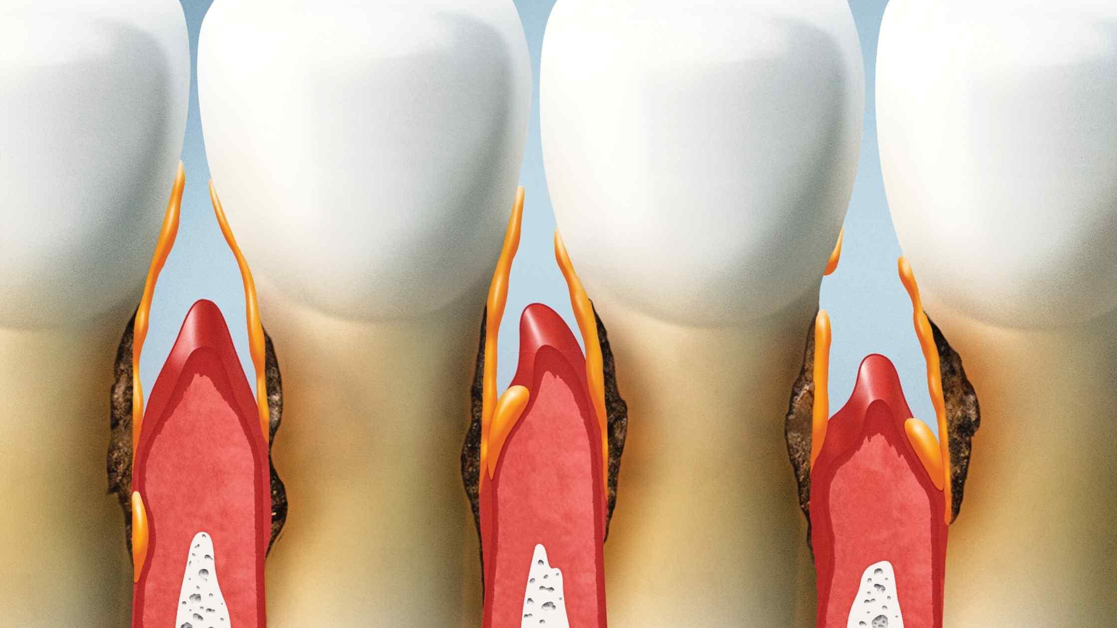 כמה עולה ניתוח חניכיים