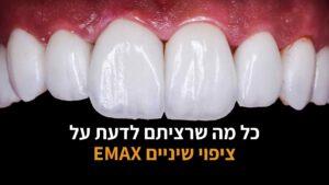 ציפויי שיניים איימקס EMAX
