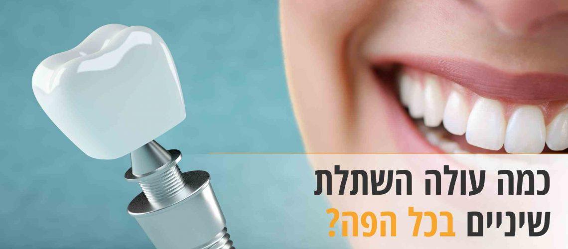 כמה עולה השתלת שיניים בכל הפה
