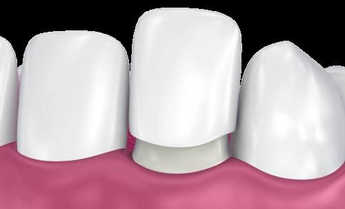 ציפוי חרסינה לשן